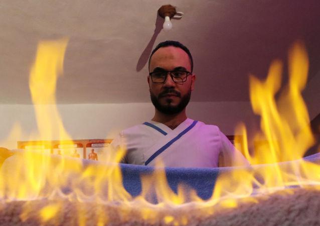 مدلك مصري يستخدم النار لتخفيف آلام العضلات