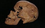 أعلنت وزارة الآثار المصرية، الثلاثاء، اكتشاف أقدم حالات الإصابة بسرطان الثدي لدى سيدة عاشت إبان عصر الأسرة السادسة، سنة 2200 ق.م