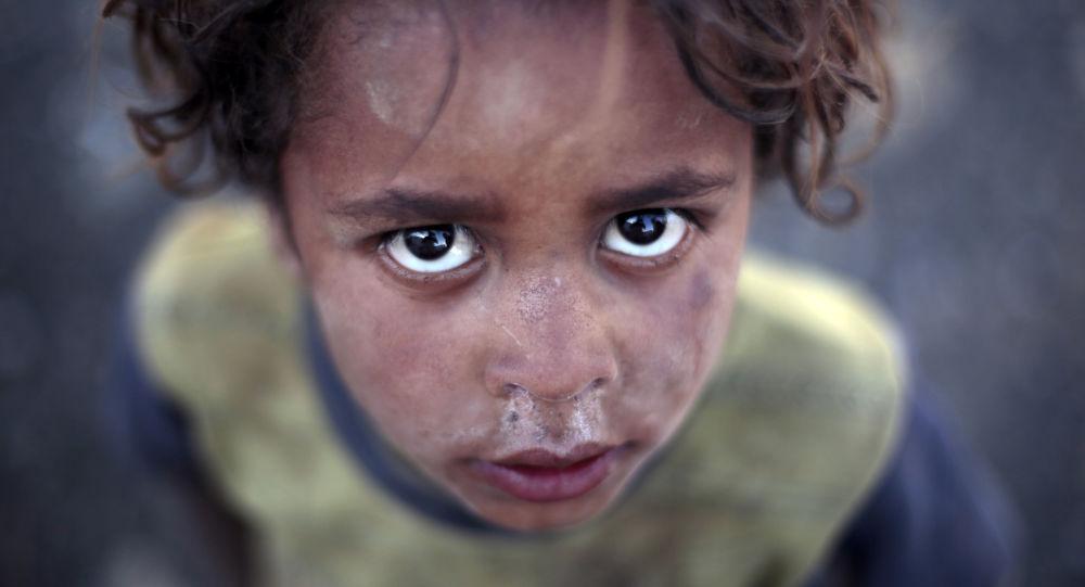 طفل يمني في مخيم للاجئين والنازحين من صنعاء، اليمن 8 يونيو/ حزيران 2016.