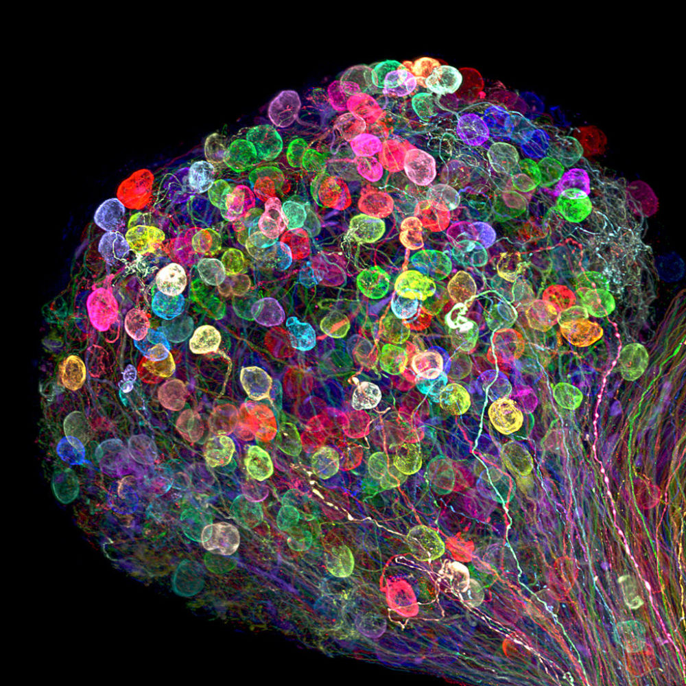 صورة لمجموعة من الخلايا العصبية لجنين إحد أنواع الطيور، والصورة مكبرة 30 مرة - حائزة على المرتبة الـ 7، اليابان