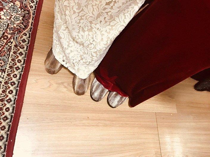 حذاء الأونتي