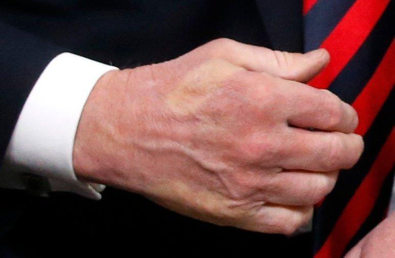 يد الرئيس الأمريكي ترامب بعد مصافحة الرئيس الفرنسي ماكرون القوية له