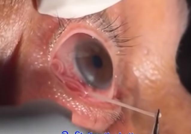 استخراج دودة طفيلية بطول 15 سم من العين